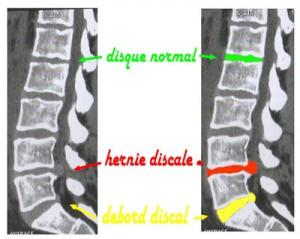 racine du nerf sciatique